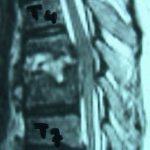 Περίπτωση Ευ. Πυ.: Σταφυλοκοκκική λοίμωξη σπονδυλικής στήλης
