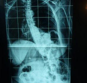 Χειρουργική Θεραπεία Σκολίωσης Ενηλίκων