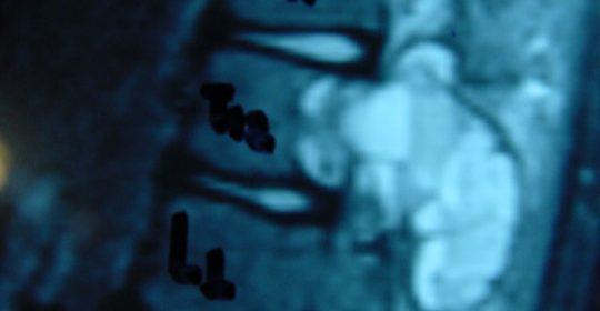 Περίπτωση Πο.Κω: Ανευρυσματική κύστη σπονδύλου