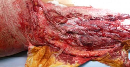 Περίπτωση: Αγ. Σα. – Πολυτραυματίας – Τραυματιολογία