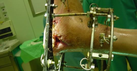 Περίπτωση: Αθ. Γι. – Τραυματολογία – Συντριπτικό κάταγμα – Τραυματολογία – Κάτω άκρα