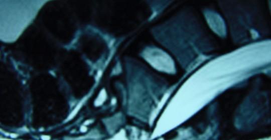 Περίπτωση: Ελ. Ελ. 14  1/2 χρονών – Διάγνωση: Κάταγμα ιερού οστού – πτέρνης – Σπονδυλικής Στήλης