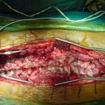 Περίπτωση Χα. Μα. – Νευροπαθητική Σκολίωση Χειρουργηθείσα