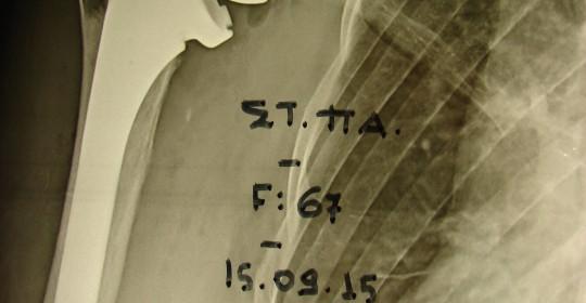 Περίπτωση Στ.Πα.: Οστεοαρθρίτιδα της κατ' ώμον άρθρωσης