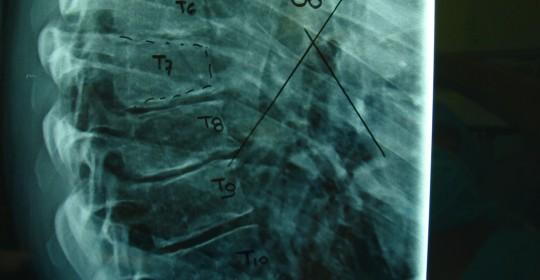 Περίπτωση: Σπ. Πα. – Κύφωση τύπου Scheuermann – Χειρουργική αντιμετώπιση