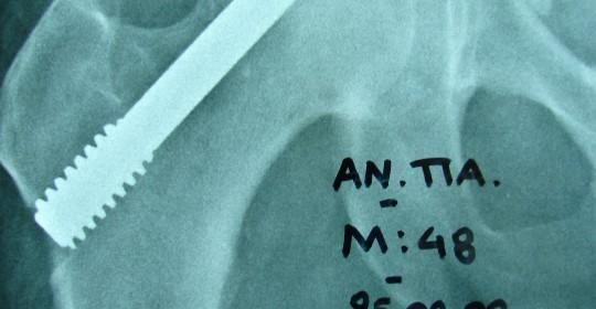 Περίπτωση: Αν. Πα. – Άσηπτη νέκρωση μηριαίας κεφαλής – Ορθοπαιδική