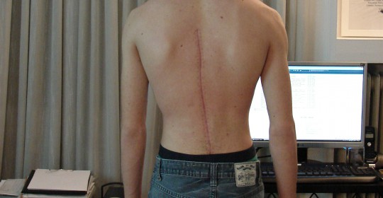 Complications in Spine Surgery