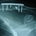 Περίπτωση: Πρ. Μυ. – Κάταγμα Κλειδός – Τραυματιολογία