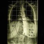 Περίπτωση Μα. Μι. – Σκολίωση Ενήλικος Χειρουργηθείσα- Παραμορφώσεις Σπονδυλικής Στήλης