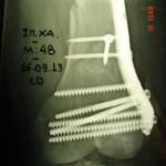 Περίπτωση: Σπ. Χα. – Δια-υπερκονδύλιο κάταγμα μηριαίου – Τραυματιολογία