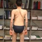 Περίπτωση Δη. Τσ. – Νευροπαθητική Σκολίωση – Σύνδρομο Steinert