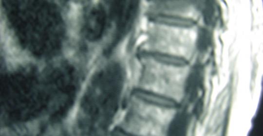 Περίπτωση: Μ.Π. – Οστεοπορωτικά Κατάγματα Σπονδυλικής Στήλης
