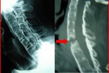 Ρευματικές Παθήσεις της Σπονδυλικής Στήλης