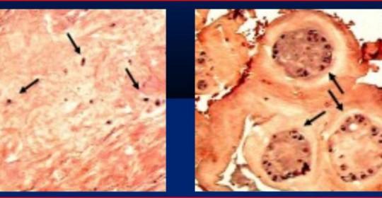 Β. Κωνσταντίνου – Μελέτη του κυτταρικού πολλαπλασιασμού κατά την εκφύλιση του μεσοσπονδύλιου δίσκου