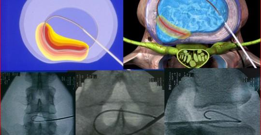 Νεώτερες Τεχνικες στη χειρουργική της Οσφυικής Μοίρας Σπονδυλικής Στήλης