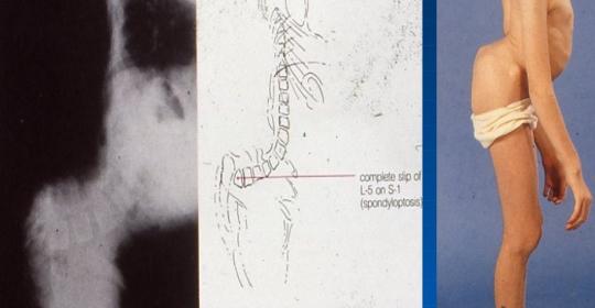 Σπονδυλόλυση – Σπονδυλολίσθηση (Spondylolisthesis)