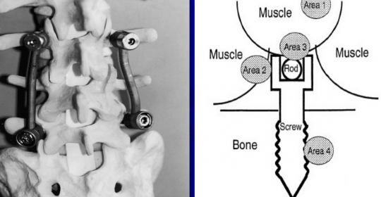 Tissue Reaction in spinal implants
