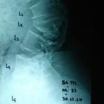Περίπτωση: Βα. Πι. – Αχονδροπλασία – Χειρουργική αντιμετώπιση