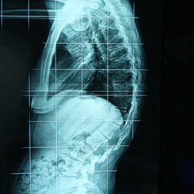 Περίπτωση: Μα. Φο. – Μετεγχειρητική αστάθεια – κύφωση της σπονδυλικής στήλης