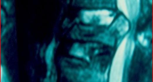 Χειρουργική αντιμετώπιση των κακοήθων νεοπλασιών της σπονδυλικής στήλης