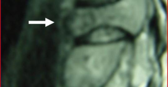 Πρωτοπαθείς και  Μεταστατικοί Όγκοι της Σπονδυλικής Στήλης και η Αντιμετώπισή τους
