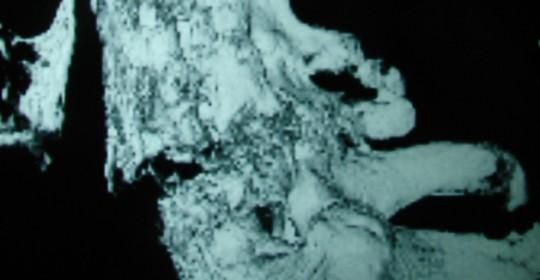 Περίπτωση Αν. Κολ. 66 ετών – Κάταγμα Αυχενικής Μοίρας Σπ. Στήλης επί εδάφους αγκυλοποιητικής σπονδυλίτιδας