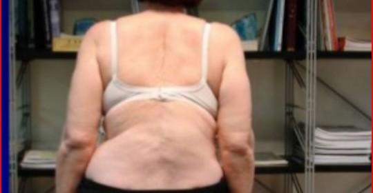 Συνήθεις σπονδυλικές ανωμαλίες στη γυναίκα μετά την εμμηνόπαυση (Σκολίωση – Κύφωση)