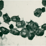 Περίπτωση: Σω. Μπ. – 63 ετών – Εχινόκοκκος Κύστη Σπονδυλικής Στήλης