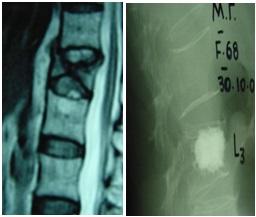 3.magnitiki-tomografia-osfiikis-moiras-kai-plagia-aktinografia