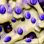 Antimicrobial Osteoinductive Biomaterials in Spine Surgery
