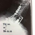 Περίπτωση : Κ.Ι. Κακοήθης Νεοπλασία Αυχενικής Μοίρας Σπονδυλικής Στήλης