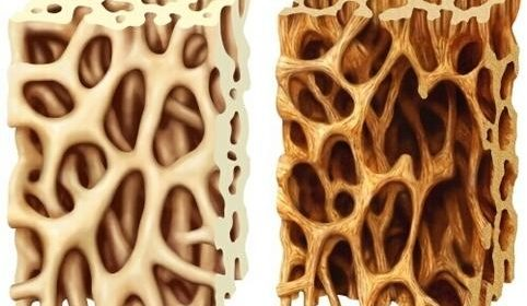 Osteoporosis causes bones to become weak and brittle