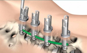 Spinal Implants restore walking in paralyzed patients