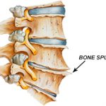 Engineered stem cells could treat degenerative disc disease