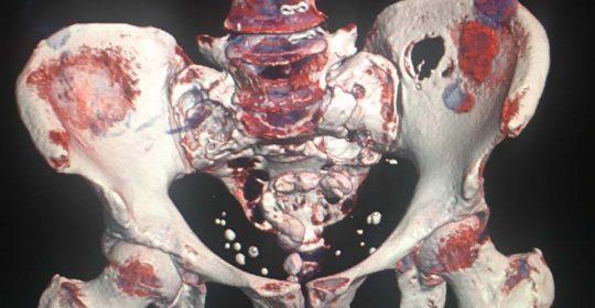 Αποσταθεροποίηση της Σπονδυλικής Στήλης σε πολλαπλά επίπεδα συνεπεία μεταστάσεων