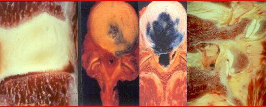 Θεραπεία εκφύλισης μεσοσπονδυλίου δίσκου με μεσεγχυματικά βλαστοκύτταρα