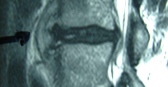 Επισκληρίδιο Απόστημα και Νευρολογικές Διαταραχές κάτω άκρων