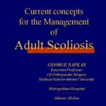 Current concepts for the Management of Adult Scoliosis